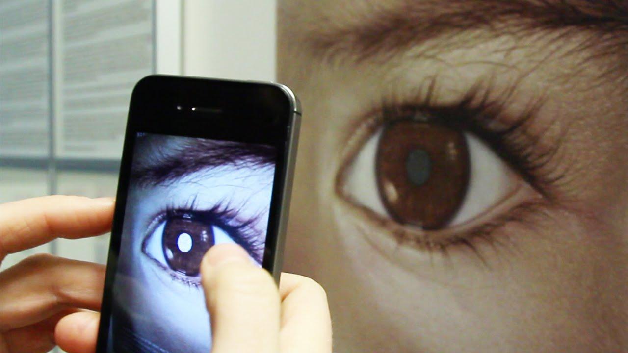 retinoblastoma 1